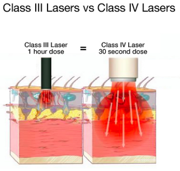 Class 4 Laser   Dr  Aaron Case - Active Release & Shockwave