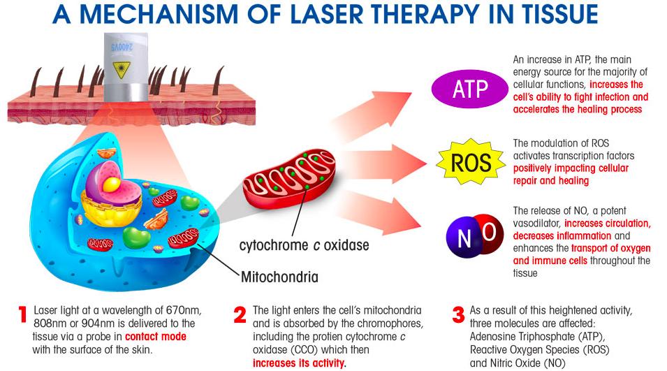 Class 4 Laser Dr Aaron Case Active Release